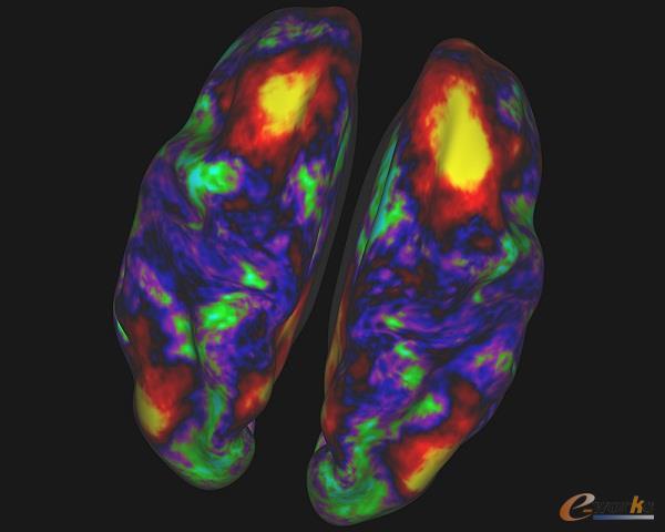 人脑核磁共振扫描图